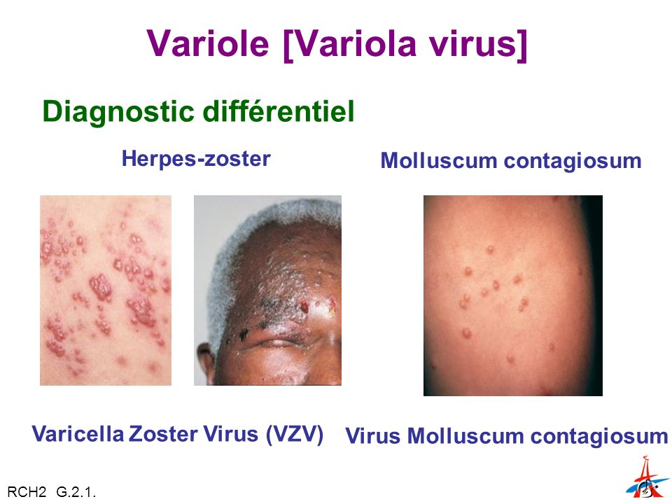 Variole [Variola virus]